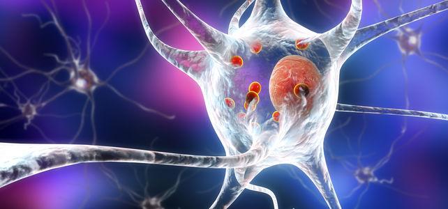 Neues Parkinson Medikament
